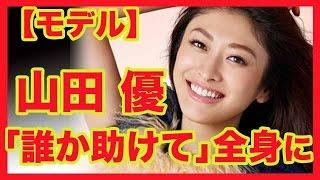 山田優「誰か助けて」全身に原因不明のじんましん モデルで女優の山田優...