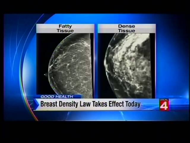 Breast Density – What You Need to Know video thumbnail