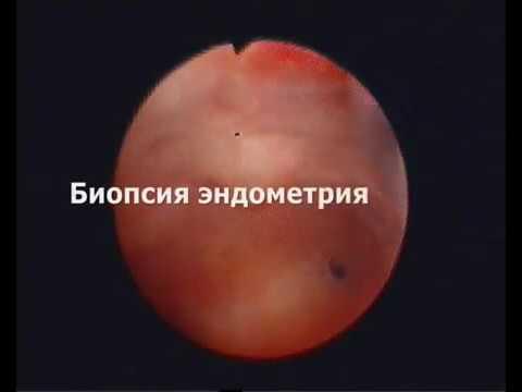 Офисная гистероскопия. Биопсия эндометрия.