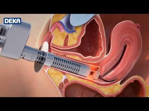 Poliklinika Harni - Laser u ginekološkoj terapiji