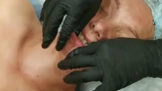 Интраоральный ( буккальный) массаж лица