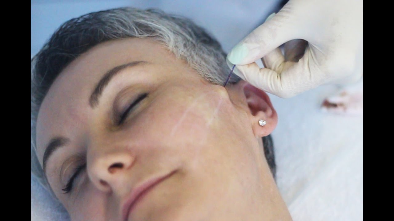 This Is Beauty | PDO Threading | Non-surgical lift that boost collagen and  elastin