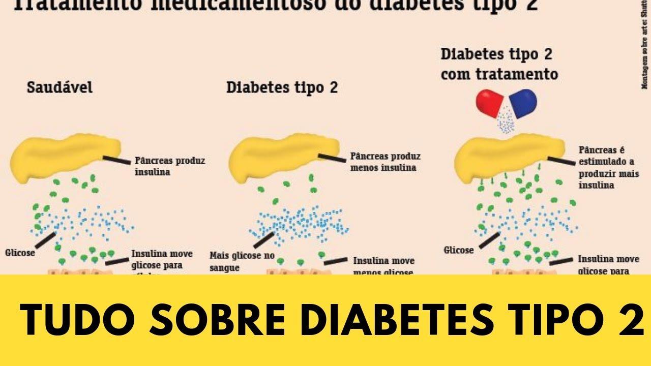 diabetes tipo 2 causas