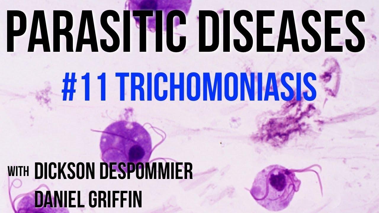 Protozoan paraziták trichomoniasis - turizmusbarcs.hu