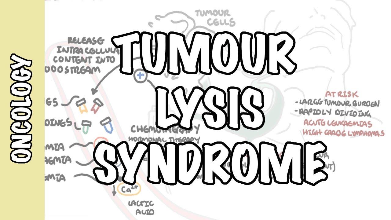 Tumour Lysis Syndrome (Tumor Lysis Syndrome) - pathophysiology, diagnosis and treatment