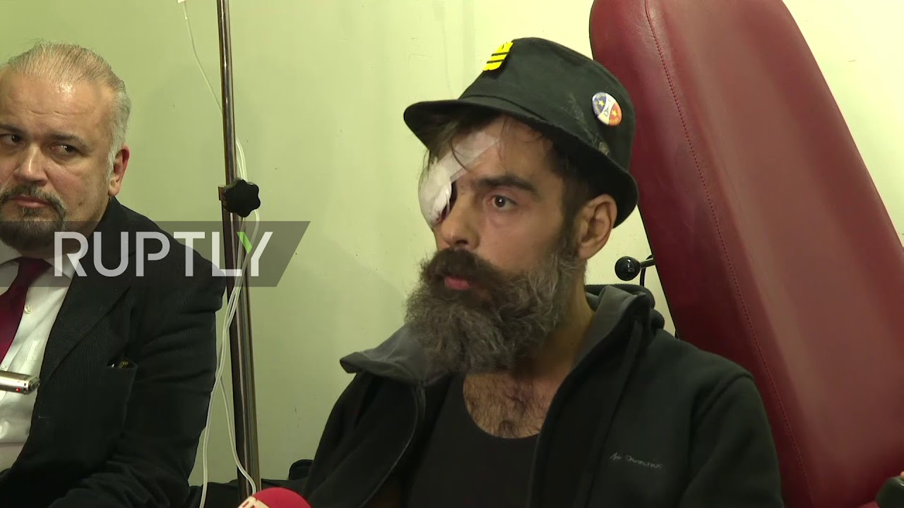 France: Injured prominent Yellow Vests activist says he was shot in the eye