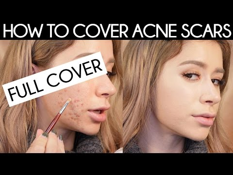 HOW TO COVER ACNE SCARS | How To Cover Acne With Makeup