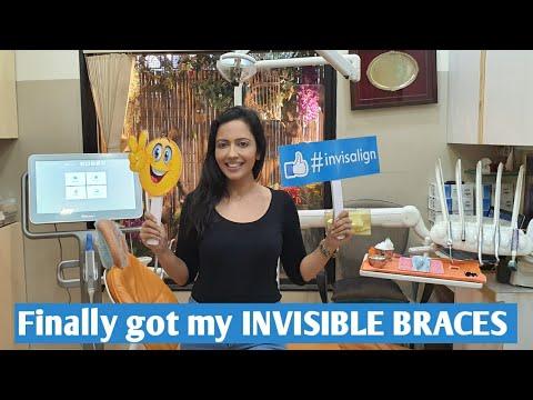 How Invisible Braces are installed | INVISALIGN Procedure & Precautions