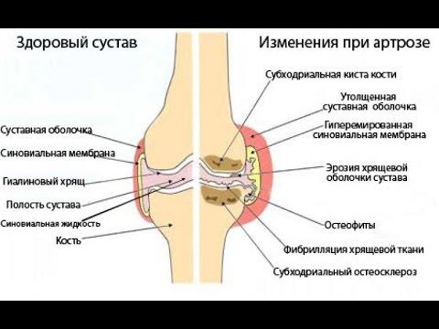 Перикардиты, лечение, причины, симптомы, профилактика.