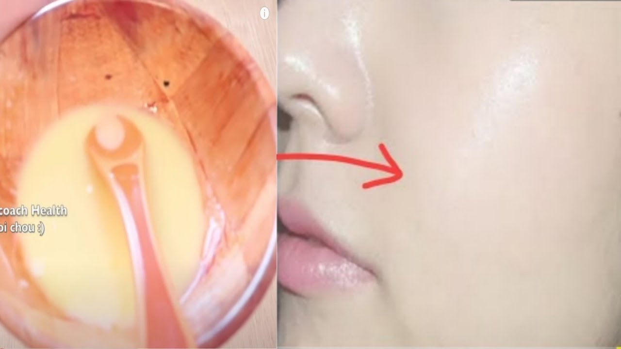 ce este verucile genitale ale papilomului