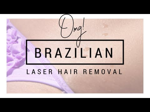 Brazilian Laser Removal  IS IT WORTH THE HYPE??