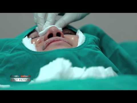 ขั้นตอนการผ่าตัดศัลยกรรมจมูก (เรื่องจริงยิ่งต้องเล่า)