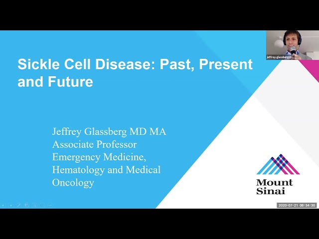 Sickle Cell Disease: Past, Present and Future