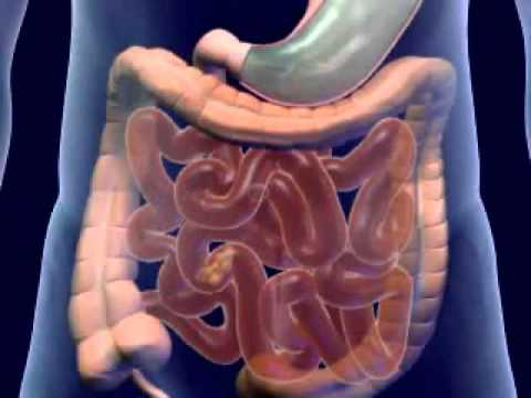 Digestive System Disorders - YouTube