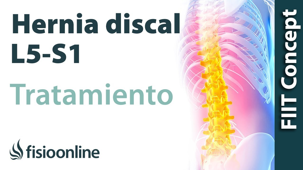 Tratamiento De La Hernia Discal L5 Y S1 Izquierda O Quinta Lumbar Y Sacro Youtube