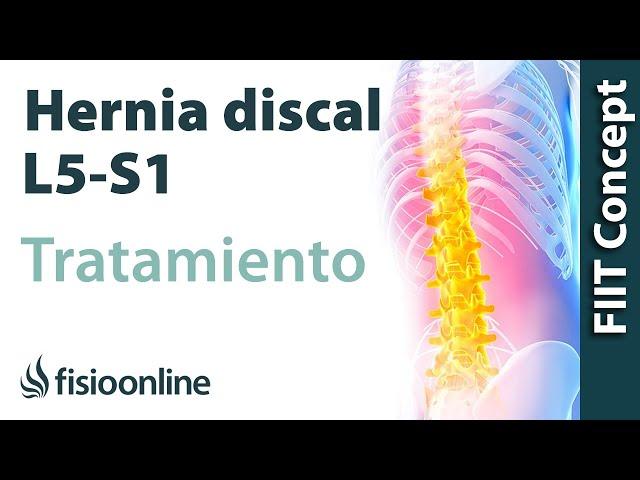 Tratamiento De La Hernia Discal L5 Y S1 Izquierda O Quinta Lumbar Y Sacro Fisioonline
