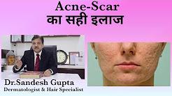 hqdefault - Laser Acne Scar Removal Delhi