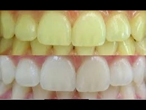 Como Clarear Os Dentes Na Hora Por Menos De 2 Reais Remover