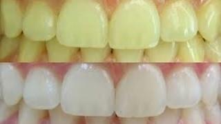 Como Clarear os Dentes Em 2 Minutos Por Menos De 2 Reais – Remover Tártaro e Gengivite