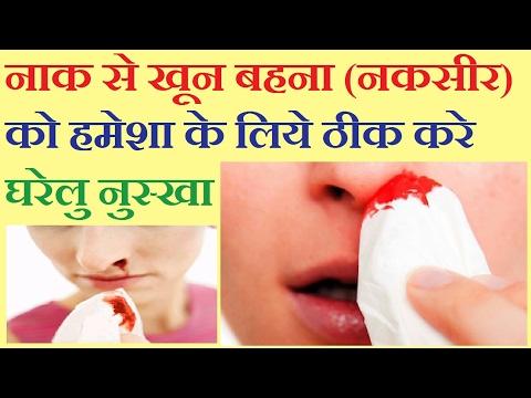 नाक से खून बहना (नकसीर) को हमेशा के लिये बंद करे घरेलू नुस्खा।।  Nakseer ka ilaj in hindi.