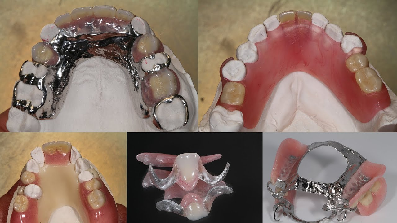 All About The Different Types of Partials