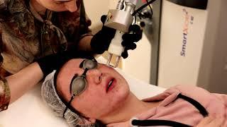 Op. Dr. Tamer Şakrak - Akne Tedavisi ve Cilt Soyma (fraksiyonel Lazer Uygulaması)