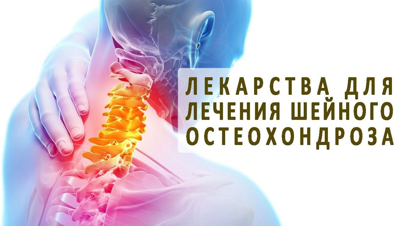 Какие гели применяют при шейном остеохондрозе