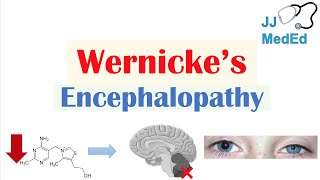 Lesson on Korsakoff's Syndrome (part of Wernicke-Korsakoff syndrome), pathophysiology and brain area.