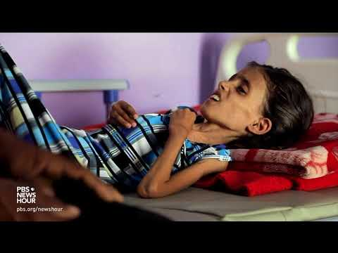 Yemen's spiraling hunger crisis is a man-made disaster