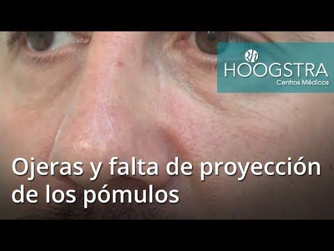 Ojeras y falta de proyección de los pómulos (18016)