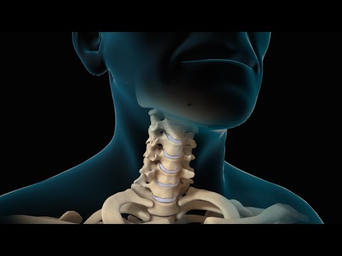 Neck Surgery | Cervical Discectomy | Nucleus Health
