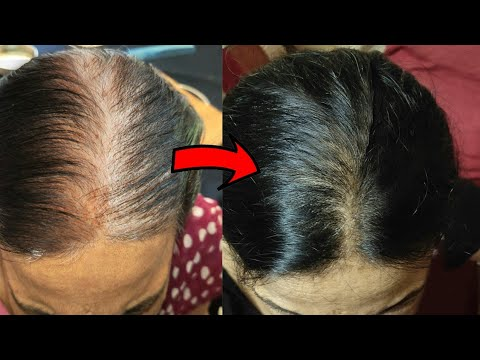 Download Rosemary Essential Oil For Hair Growth|Rosemary Oil For Hair Growth Before After Result|Shinny Roops