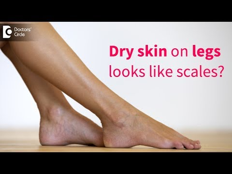 great-tips-to-get-rid-of-very-dry-flaky-skin-on-legs---dr.-rasya-dixit-|-doctors'-circle