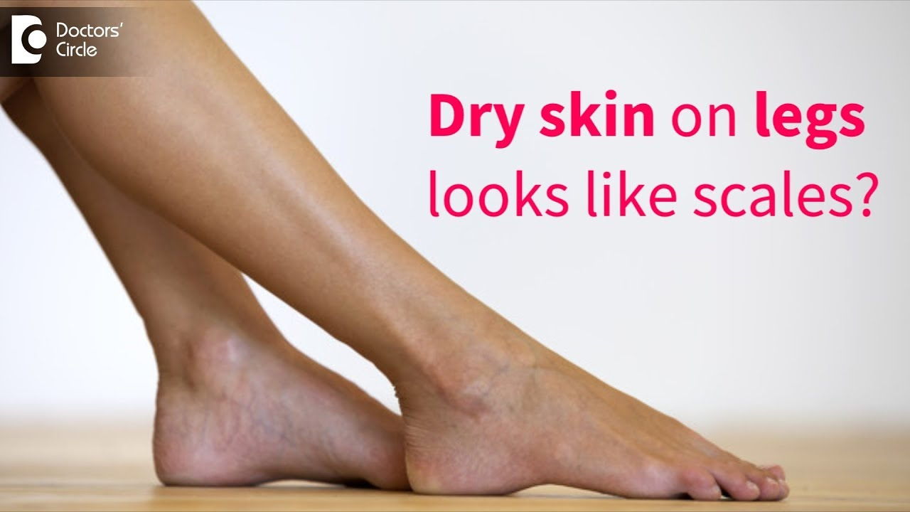 Great Tips To Get Rid Of Very Dry Flaky Skin On Legs Dr Rasya Dixit Doctors Circle Youtube
