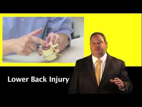 Lower Back Injuries – John Cooper, Norfolk Personal Injury Lawyer