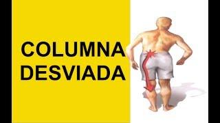 Hernia Discal Causa Columna Desviada (Nervio Ciatico Pinchado)