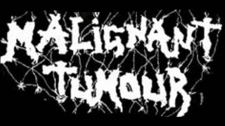 Watch Malignant Tumour In Bottle Theres No Law video