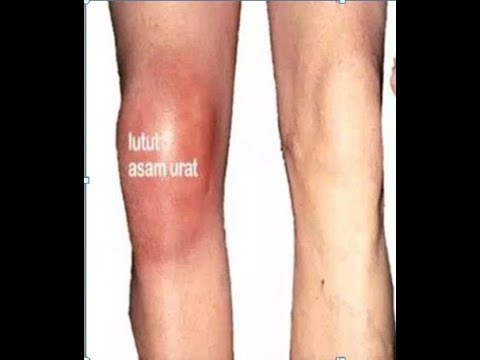 Sendi pada lutut memungkinkan terjadinya gerakan