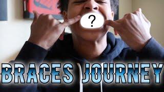 Braces Journey Episode: 1 | (The Beginning) thumbnail