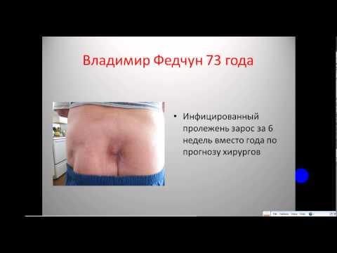 Что такое лимфома? Симптомы, лечение, прогноз, стадии