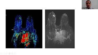 Ductalis papilloma patológia körvonalai