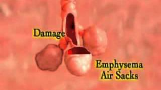 Bronchitis Symptoms and COPD