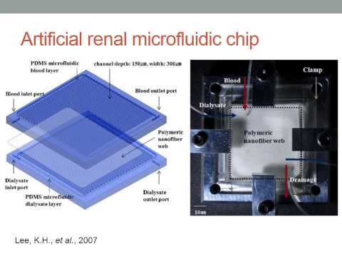 Topic Review Microfluidics based dialysis devices