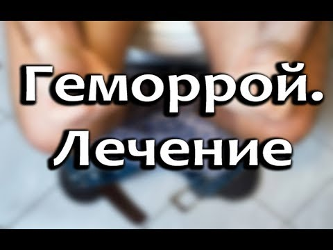 Геморрой - Что такое геморрой? Причины, симптомы и виды
