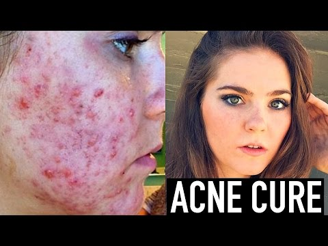 CURING ACNE + Acne Scar Treatment