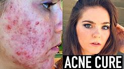 hqdefault - Acne Acnecure Scar Treatment