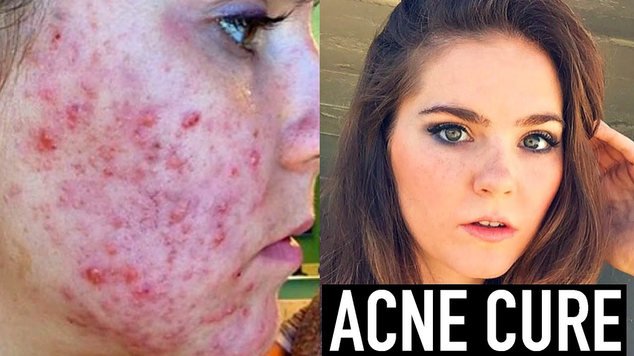 how to clear acne scars reddit