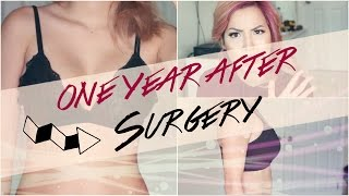 ONE YEAR AFTER PLASTIC SURGERY | BOOB JOB + SCAR UPDATE