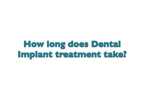 How long does Dental Implant treatment take?