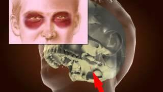 Basilar Skull Fracture